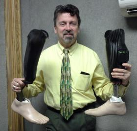 Jack Richmond with his tension spring running leg on left and computer enhanced leg with functional ankle pictured on right.