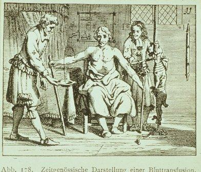 This image shows an early attempt at a blood transfusion. Starting in the 17th century, some doctors would use animal blood to treat human patients.