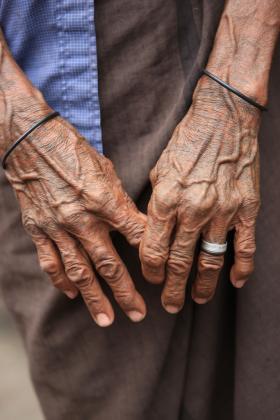 Age is the highest risk factor for Alzheimer's.