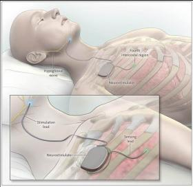 Milwaukee researchers helped develop a new device to help patients with sleep apnea.