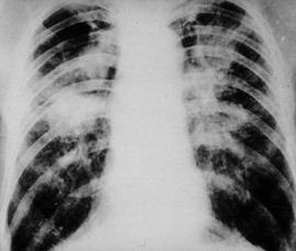 Black lung is a deadly disease caused by exposure to dust underground.