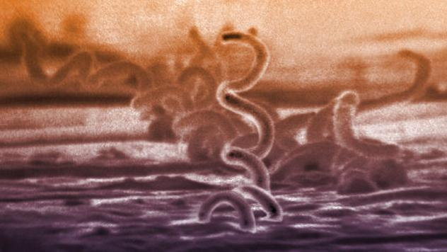 The cause of syphilis is a bacterium called Treponema pallidum.