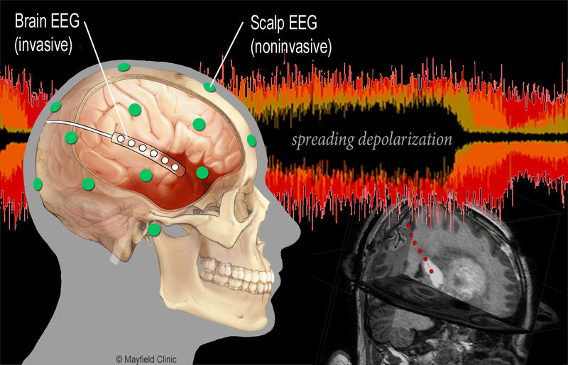 "A new study hopes to prove that doctors can monitor so-called ""brain tsunamis"" with a non-invasive cap of electrodes."