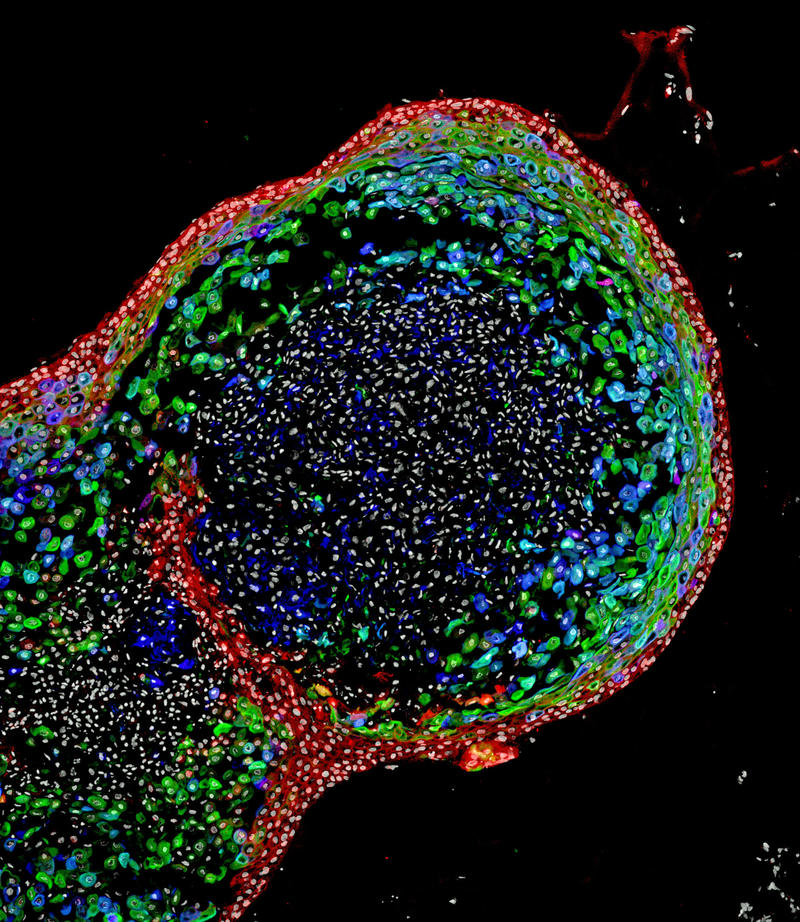 This confocal microscopic image shows a two-month-old human esophageal organoid bioengineered by scientists from pluripotent stem cells. About 700 micrometers (0.027 inches) in size, the organoid is stained to visualize key structural proteins.