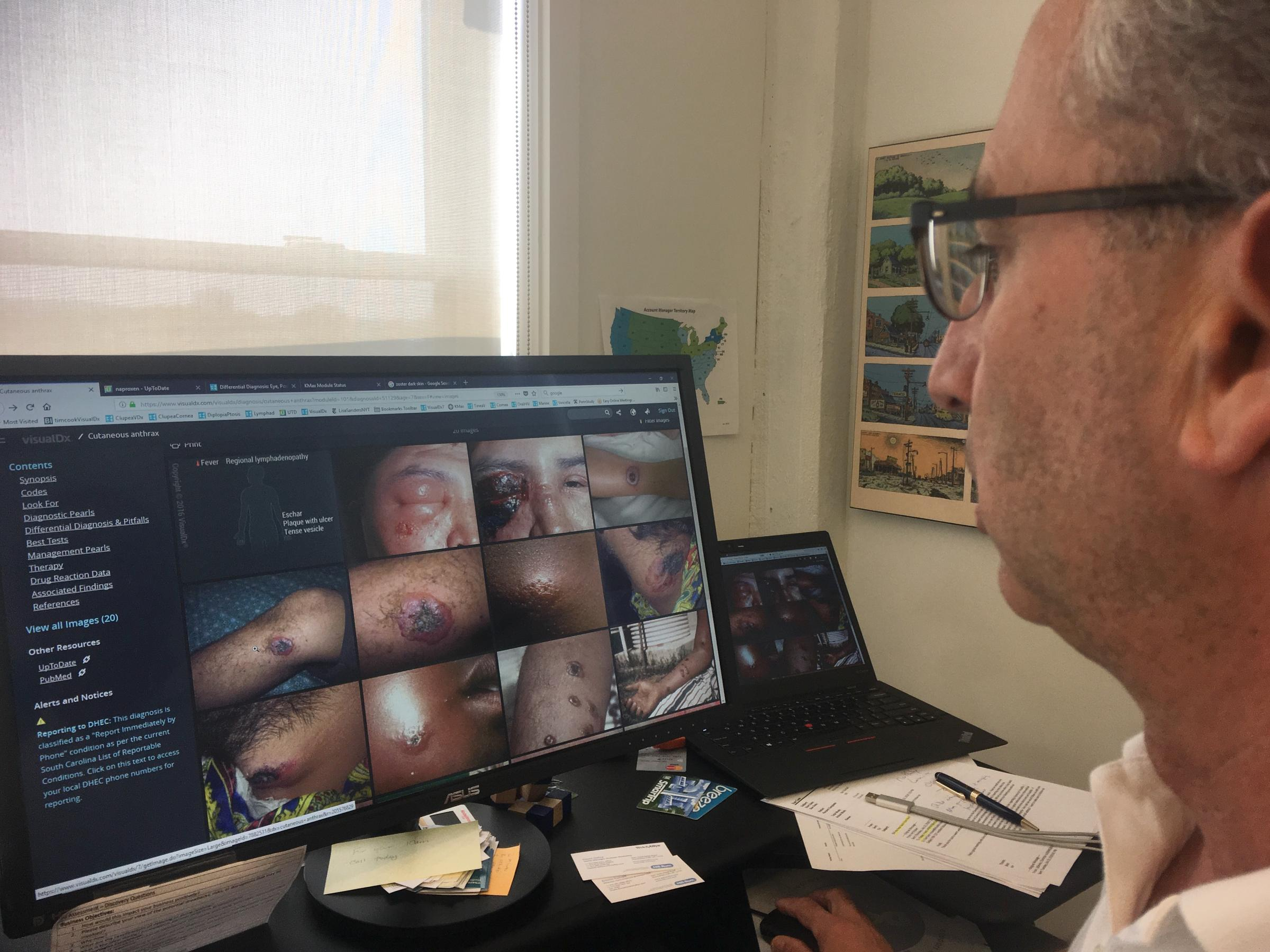 Art Papier Ceo Of Visualdx Demonstrates How The Software Returns Image Results Matching Description Skin Disease From Database
