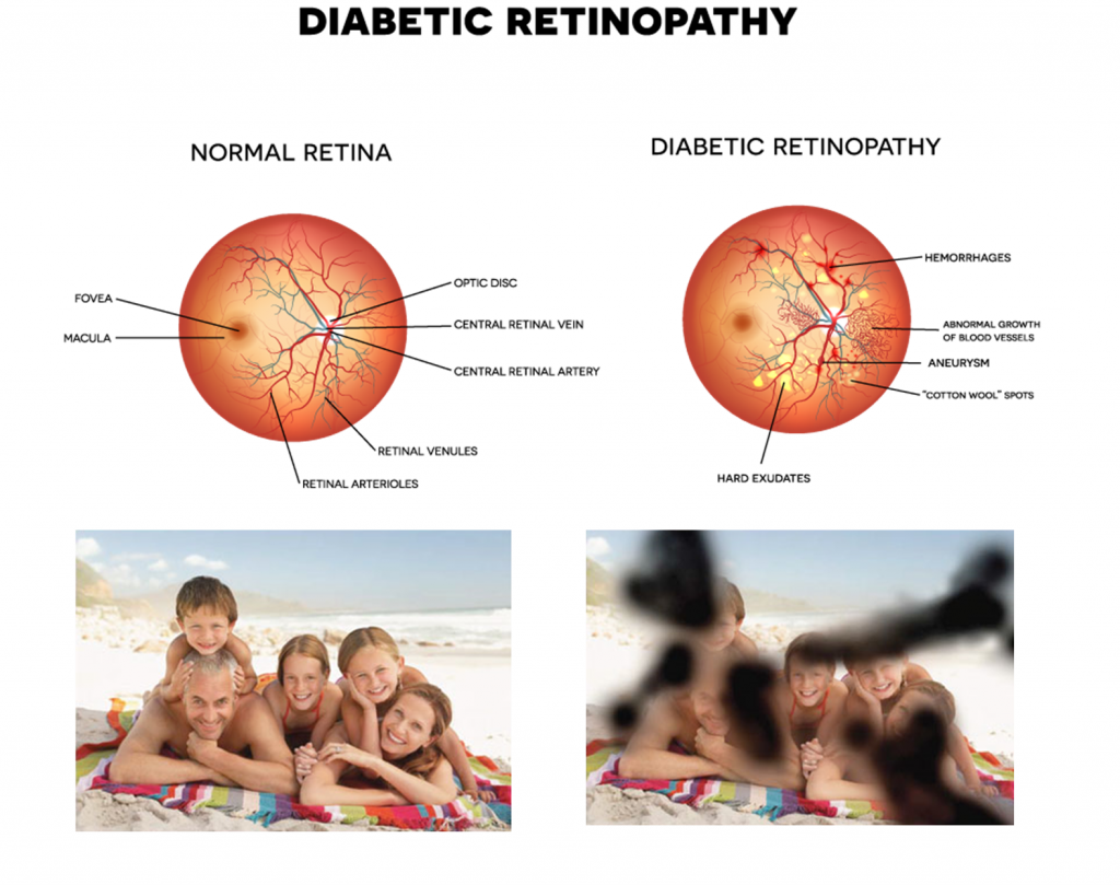 867f2591a45 Diabetic Retinopathy  It s not just about blood sugar levels