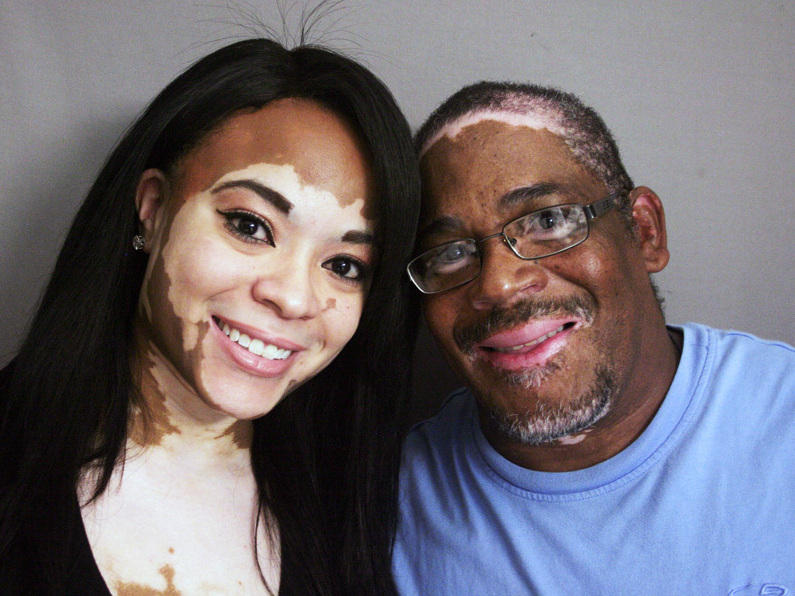 Inheriting A Rare Skin Condition And The Ability To Laugh About It Vermont Public Radio