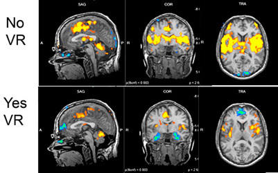 These images from an fMRI scan show areas of the brain affected by pain, and how those activated areas quieted down for one test patient who donned a headset that immersed the patient in a virtual reality world.