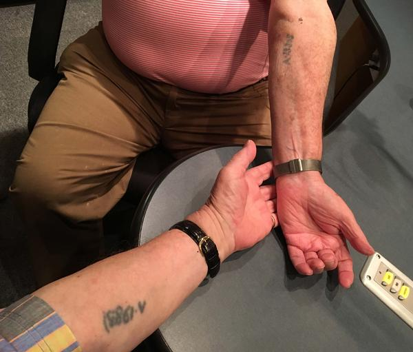 Howard Chandler and Martin Baranek show the numbers tattoed on them at Auschwitz.
