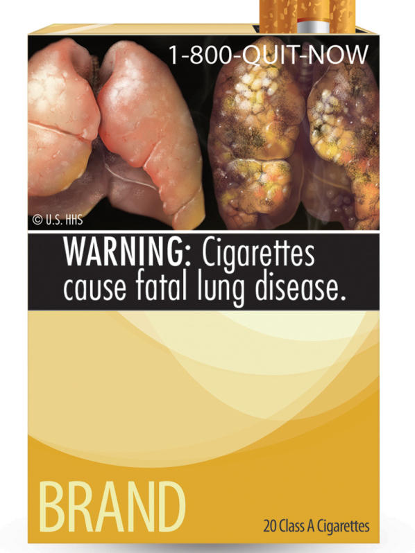This image provided by the U.S. Food and Drug Administration shows one of nine new warning labels it wants cigarette makers to use. Tobacco companies have sued, claiming the mandate is unconstitutional.
