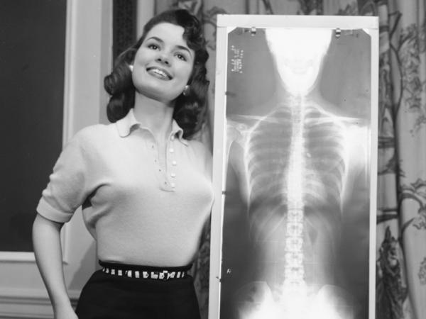 Lois Conway, Miss Correct Posture for 1956, stands tall next to an X-ray of her spine at a chiropractor-judged beauty contest held in Chicago.