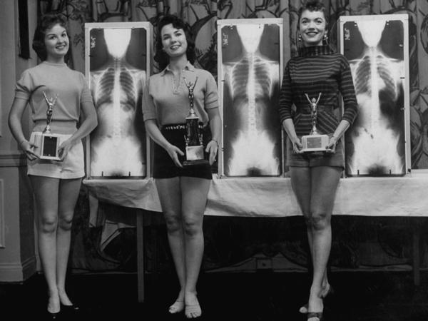 Contestants (from left) Marianne Baba, Lois Conway and Ruth Swenson pose with trophies and their X-rays.