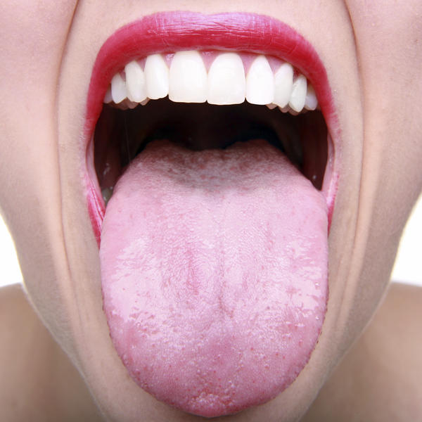 Scientists examined bacteria in the mouths of twins, and found that it's not as similar as they thought it would be.