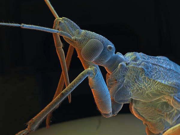 A kissing bug is ready for its scanning electron micrograph extreme close-up. This insect bites humans, sucks their blood and infects them with a parasite, transmitted through feces.