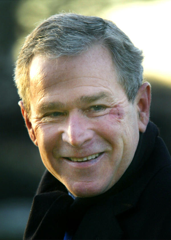 In 2002, former President George W. Bush apparently choked on a pretzel while watching a football game, briefly lost consciousness and was bruised from falling to the floor from a couch.