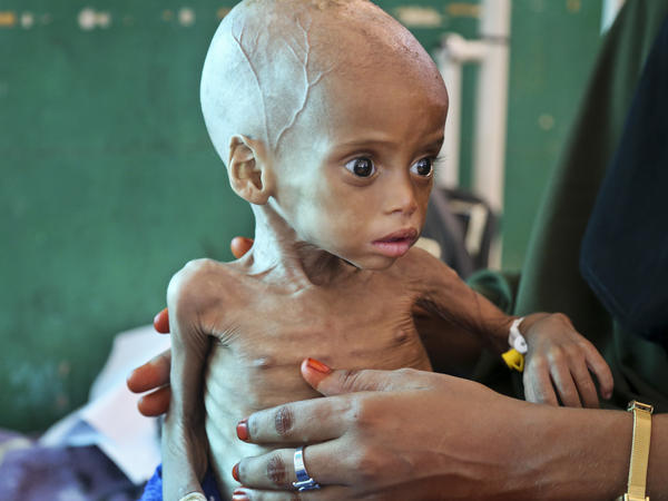 Acutely malnourished child Sacdiyo Mohamed, 9 months old, is treated at Banadir hospital in Somalia on Saturday. Somalia's government has declared the drought there a national disaster.