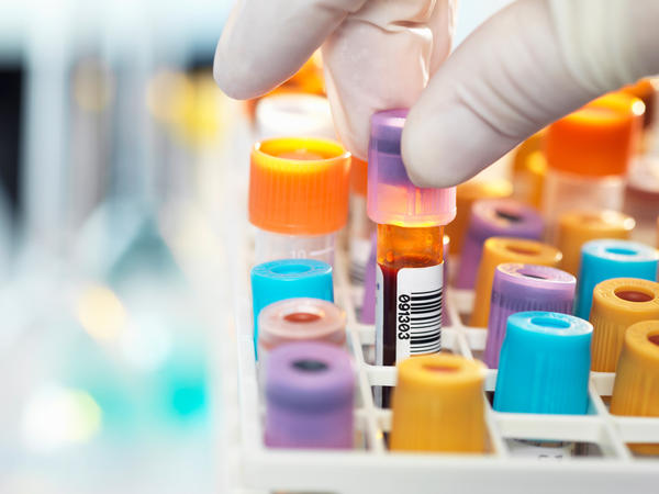 The U.S. Preventive Services Task Force says there is not enough evidence to determine whether testing people with no symptoms of celiac disease provides any benefit for those patients.