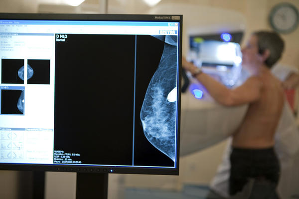 Women have gotten conflicting advice from doctors about when to have mammograms.