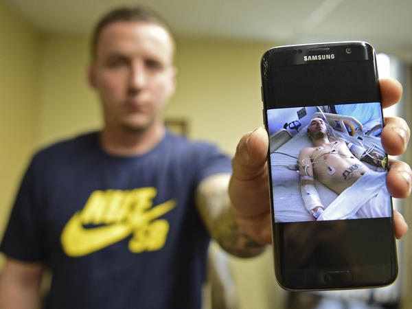 At the Neil Kennedy Recovery Clinic in Ohio this month, Paul Wright shows a picture of himself after a near-fatal overdose in 2015. Politicians and health experts fear that cuts to Medicaid in the Senate GOP health care bill will leave people addicted to opioids without access to treatment.