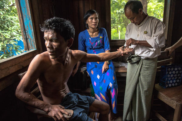 This 26-year-old man in the town of Min Hla in Myanmar has leprosy. Health care workers touch his skin with a napkin to see whether he feels it — a way to determine nerve damage.