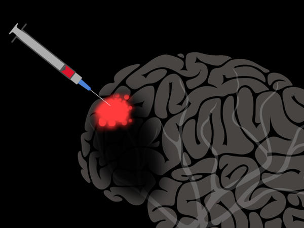 Jocelyne Bloch: The Brain May Be Able To Repair Itself — With Help