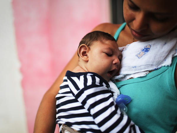 A mother holds her baby, who has microcephaly, in Recife, Brazil.