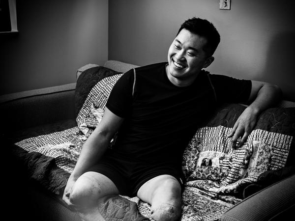 On Dec. 13, 2012, while on a foot patrol in Afghanistan, 1st Lt. Jason Pak was hit by a roadside bomb. The blast took his legs and part of his hand.