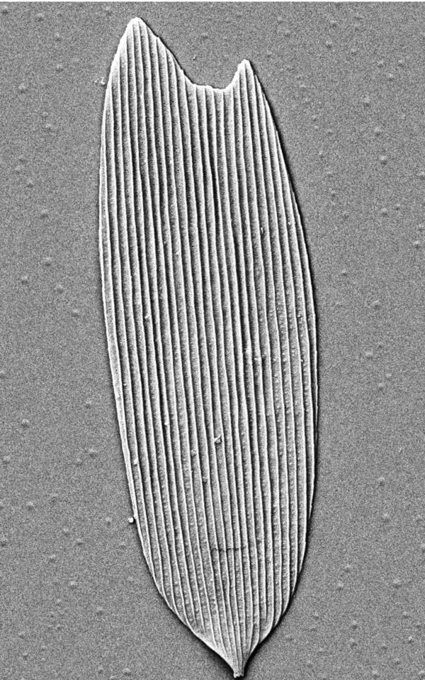 An electron microscope image of a 201 million-year-old hollow scale from a moth, isolated from soil collected in Germany.
