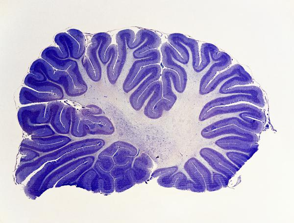 The cerebellum, a brain structure humans share with fish and lizards, appears to control the quality of many functions in the brain, according to a team of researchers.