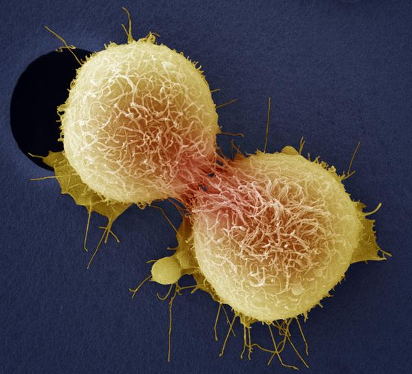 Cancer of the cervix is one of the most common cancers affecting women and can be fatal. Here, cervical cancer cells are dividing, as seen through a colored scanning electron micrograph.