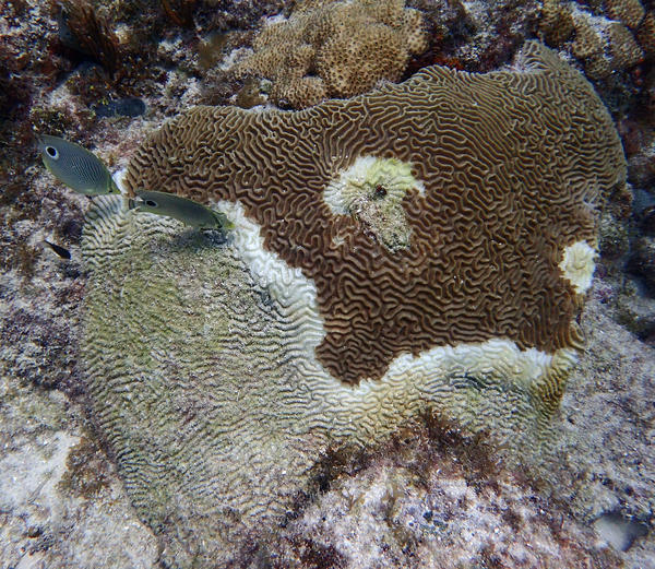 Stony coral tissue loss disease was first noticed off Miami in 2014 and has spread throughout South Florida's reefs.