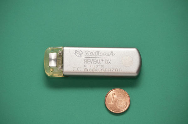 A Medtronic heart monitor implant. Medtronic is one of the companies Castillo's team investigated for device-related deaths.