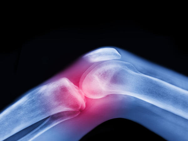 X-ray of knee with injury.
