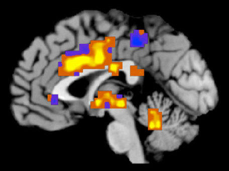 A technique for imaging the brain allowed researchers to distinguish between physical and emotional pain.