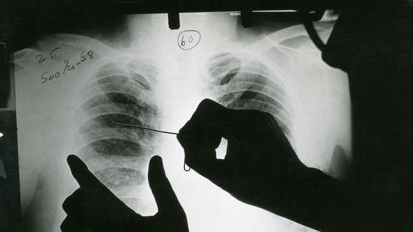 In this historical image, a doctor reviews an X-ray of a patient with black lung disease. Federal researchers say they've now identified the largest cluster ever recorded of the most advanced stage of the disease.