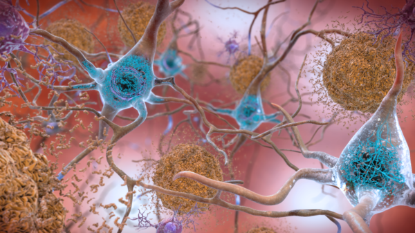 The squiggly blue lines visible in the neurons are an Alzheimer's biomarker called tau. The brownish clumps are amyloid plaques.