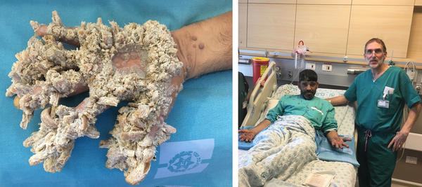 """The growths on Mahmoud Taluli's hands were the result of a severe case of a rare condition called epidermodysplasia verruciformis — sometimes referred to as """"tree man"""" syndrome because the tumors can resemble wood or bark. At right: Taluli after his operation."""