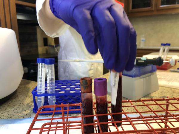 Roskamp Institute is collecting blood and urine from people exposed to red tide toxins. Jessica Meszaros/WUSF