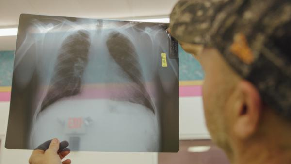 Coal miner Nick Stiltner reviews an X-ray of his lungs showing black lung disease at the Stone Mountain Clinic in Grundy, Va.