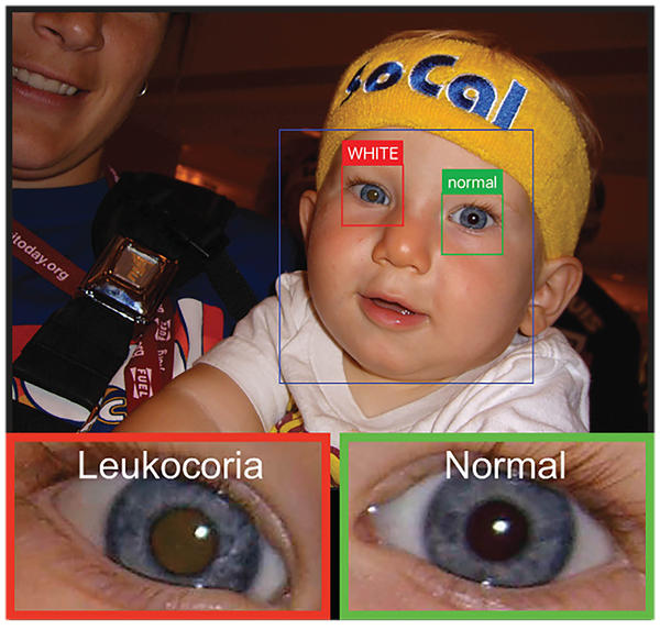 An app uses a smartphone camera to detect leukocoria, a pale reflection from the back of the eye. It can be an early sign of disease. Here it appears light brown compared the healthy eye.