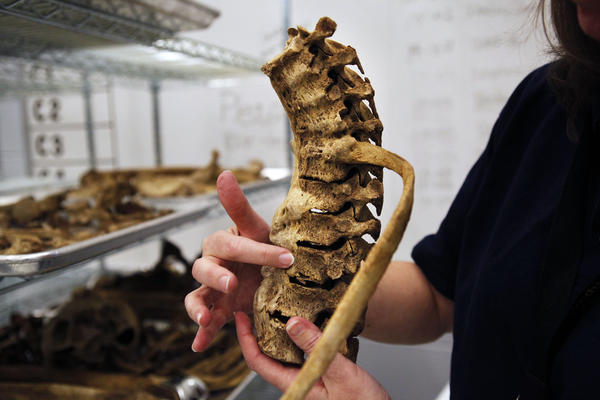 Experts can piece together life stories from a person's bones.