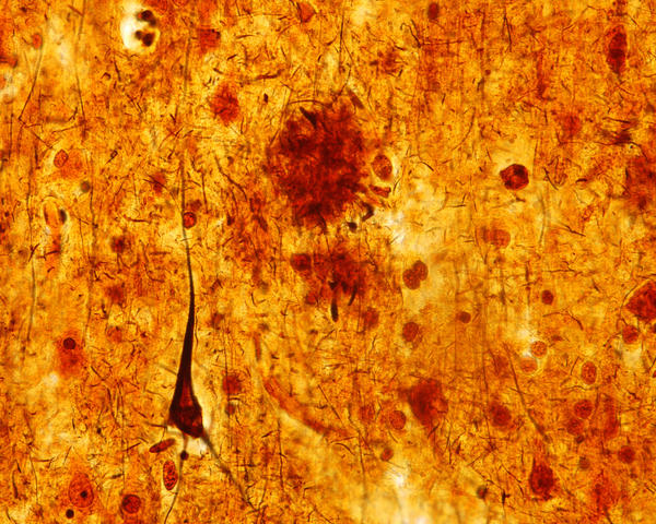 This light micrograph from the brain of someone who died with Alzheimer's disease shows the plaques and neurofibrillary tangles that are typical of the disease. A glitch that prevents healthy cell structures from transitioning from one phase to the next might contribute to the tangles, researchers say.
