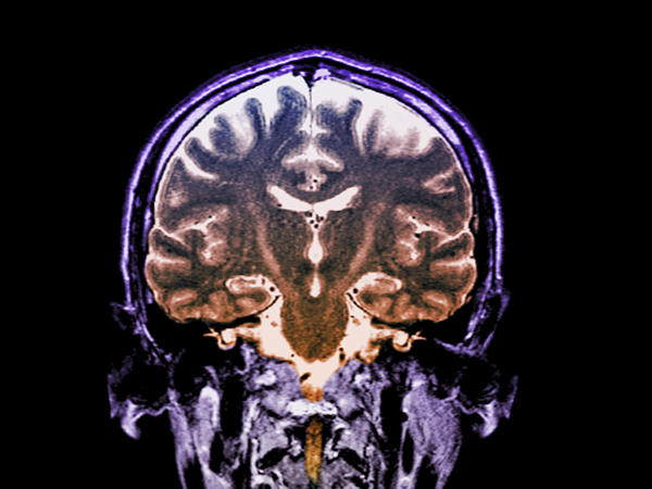 Patients with a fast-progressing form of ALS who got daily doses of an experimental two-drug combination called AMX0035 scored higher on a standard measure of function than patients who didn't get the drug.