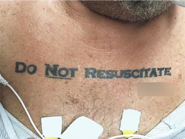Doctors in Miami found that a man's tattoo expressing his end-of-life wishes was more confusing than helpful.