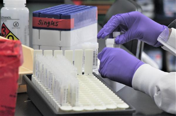Samples undergo coronavirus testing at a lab that usually turns results within 24 hours. Nine months into the pandemic, dozens of Kansas nursing homes are still struggling with access to fast testing.