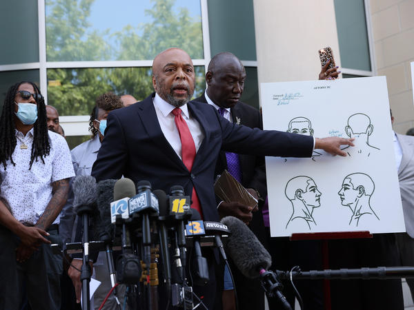 Speaking to reporters on April 27 in Elizabeth City, N.C., Wayne Kendall, one of the lawyers representing the family of Andrew Brown Jr., points to an autopsy chart showing where Brown was shot.