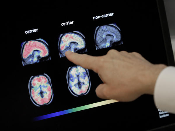 Dr. William Burke goes over a PET brain scan in 2018 at Banner Alzheimer's Institute in Phoenix. The drug company Biogen has received federal approval for a medicine to treat early Alzheimer's disease.