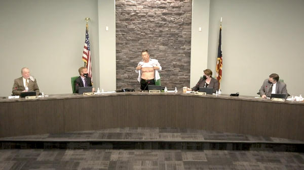 """West Chester, Ohio, Board of Trustees Chairman Lee Wong bares his chest at a meeting Tuesday. Those scars, suffered during his U.S. military service, are """"proof"""" of his patriotism, he said."""