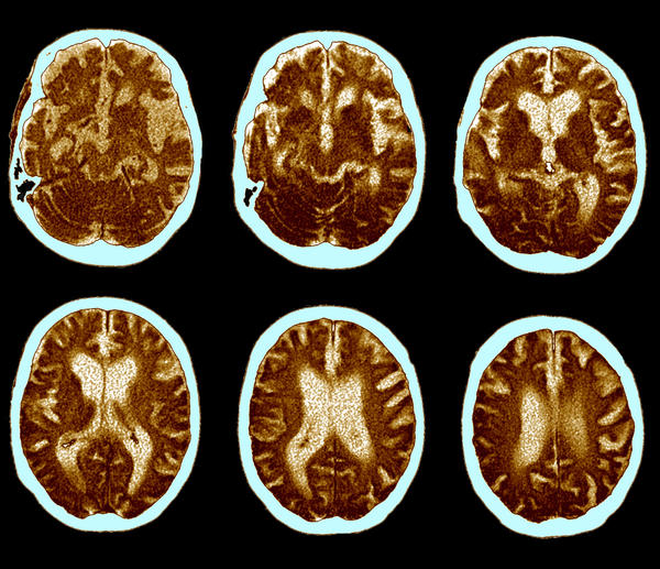 Scientists are working to develop new treatments for Alzheimer's disease by looking beyond amyloid plaques, which have been the focus of most Alzheimer's drug development in the past 20 years.