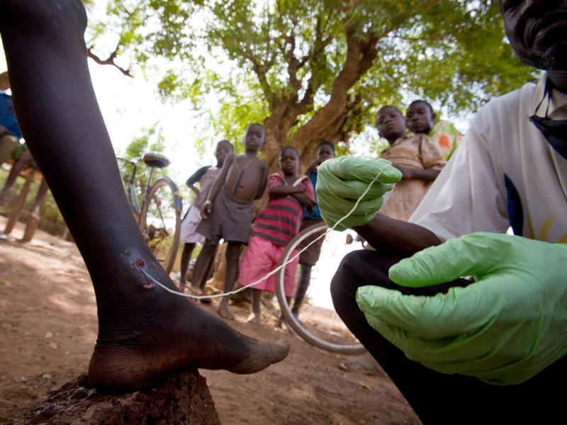 Medical worker Abaare Hussein extracts a Guinea worm from a child's leg in Savelugu Village in northern Ghana in 2007.